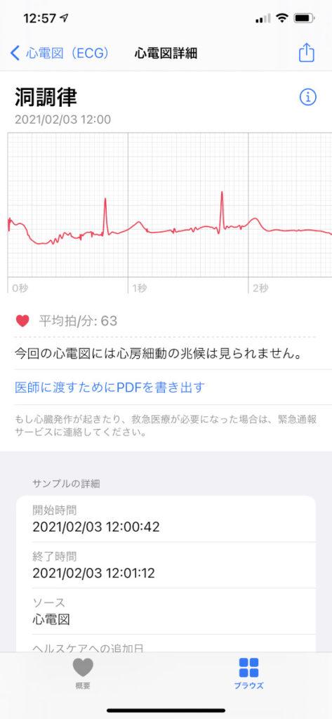 心電図アプリ例